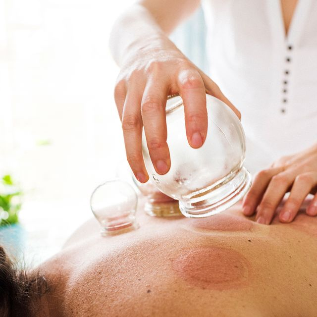 What Cupping Therapy Really Feels Like