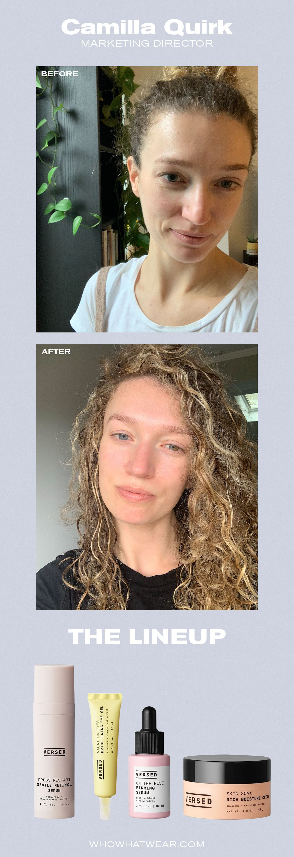 Our Before And After Photos Are Proof This Affordable Skincare
