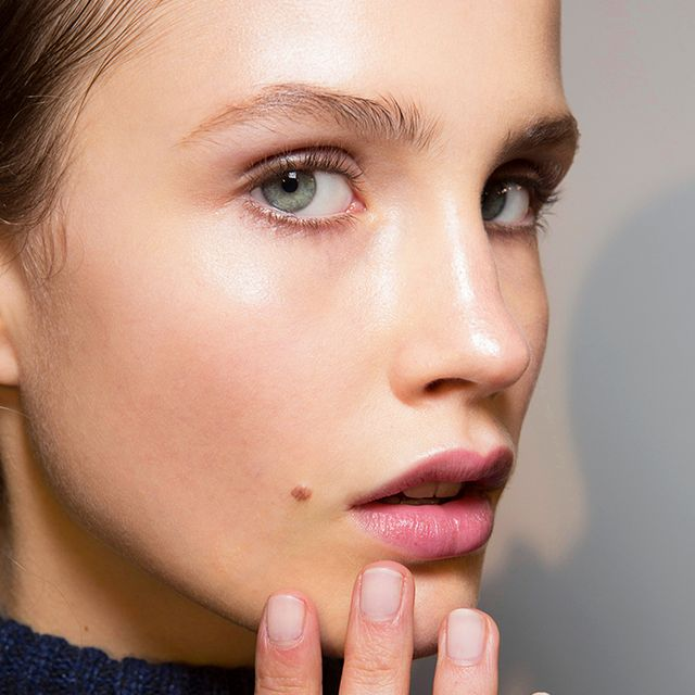 5 Mistakes to Avoid If You Have Adult Acne