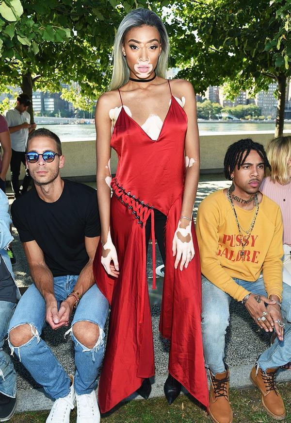 WHO:Winnie Harlow WHAT:Kanye West Yeezy Season 4 WEAR:DKNY Lace Up Dress($698).