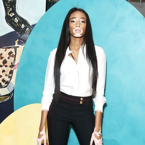 Why Every Fashion Girl Is Obsessed With Winnie Harlow
