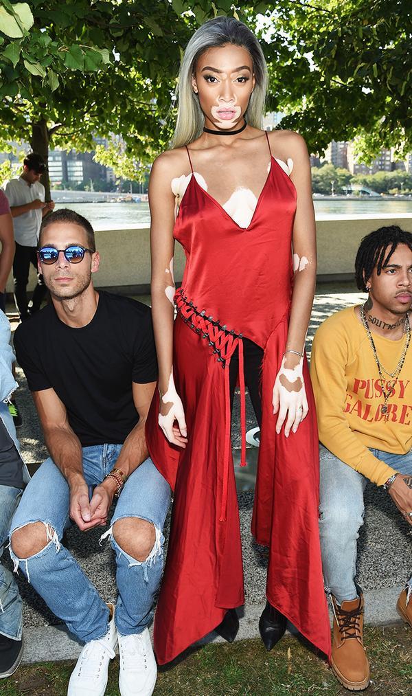 On Winnie Harlow: DKNY Lace-Up Dress($698); Nobody Denim Cult Skinny Jean($199).