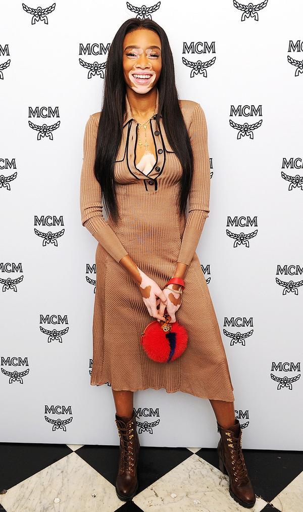 On Winnie Harlow:Burberry dress; MCM clutch.