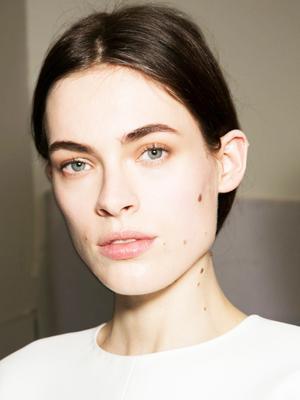 The Weird Way Botox Can Fix a Gummy Smile