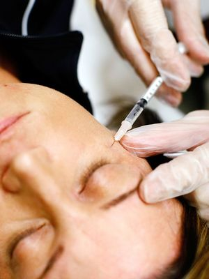 5 Long-Term Effects of Botox You Didn't Know About