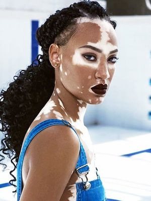 How Being Diagnosed With Vitiligo (Almost) Sabotaged My Love Life