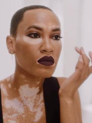 CoverGirl's New Campaign Model Is Celebrating Diversity Through Her Vitiligo