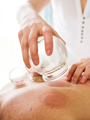 Here's What to Expect the First Time You Get Cupping