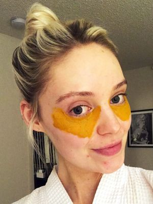 This Viral DIY Turmeric Mask Recipe Cured My Dark Under-Eye Circles for Real