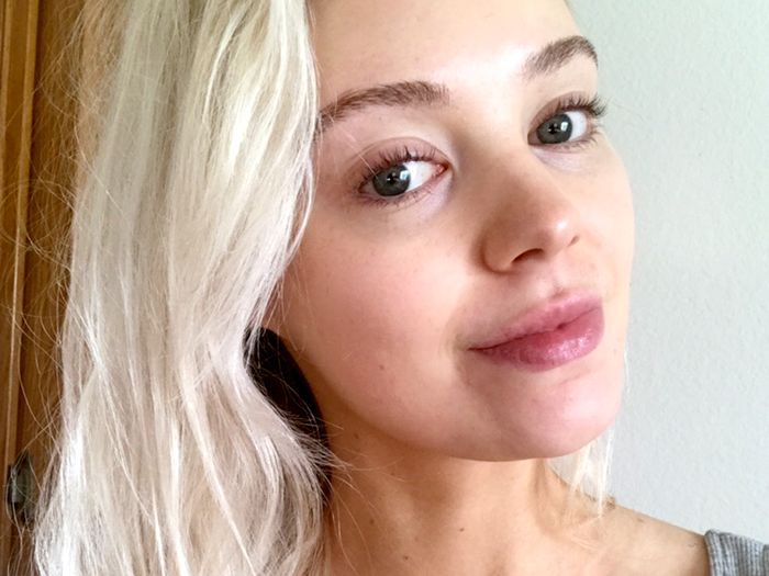 I'm a Pimple-Prone Beauty Editor—Here's the Daily Skincare Routine I Swear By