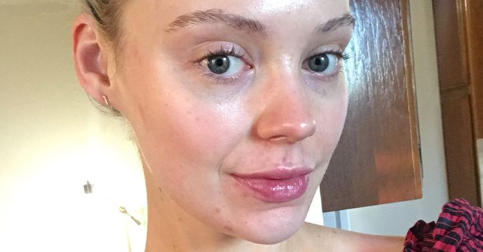 I Have Acne—These Are the Hydrating Skincare Products My Face Actually Tolerates