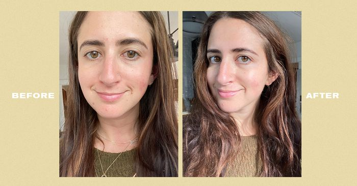 Our Before and After Photos Are Proof This Affordable Skincare Line Really Works