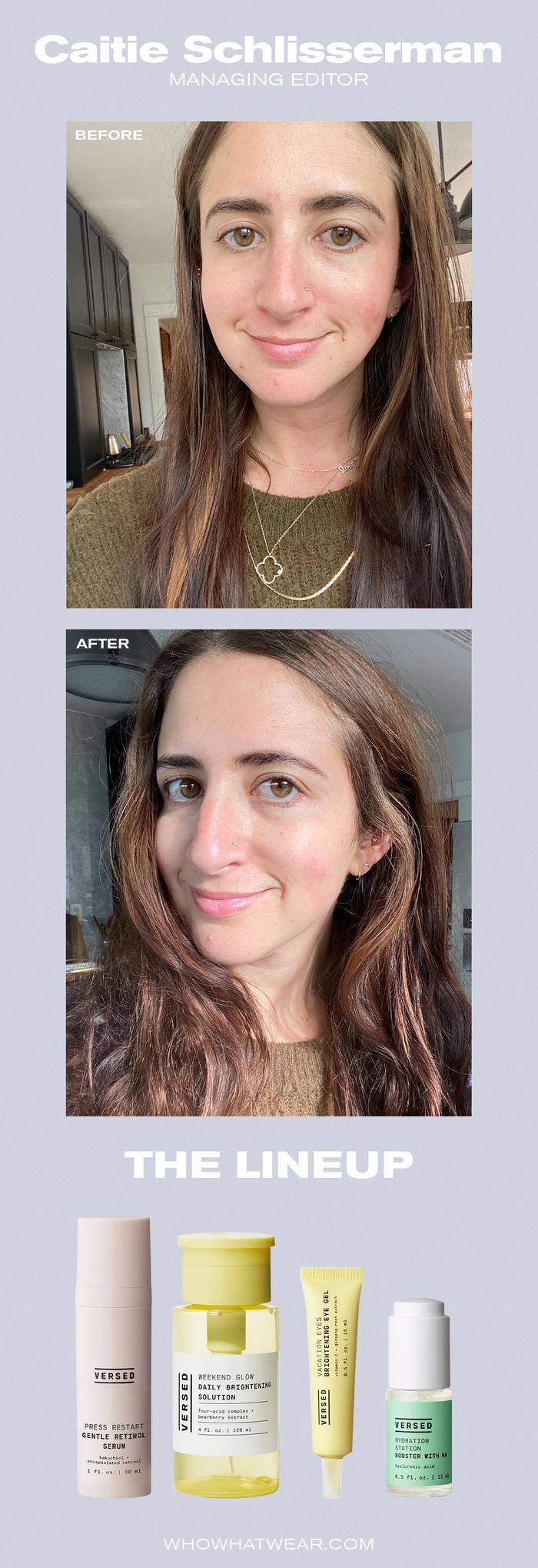 Caitie Schlisserman Versed Skincare Reviews:
