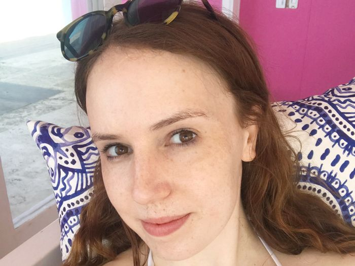 I Had Skin Cancer at 20 Years Old—Here Are the 5 Suncare Steps I Never Forget