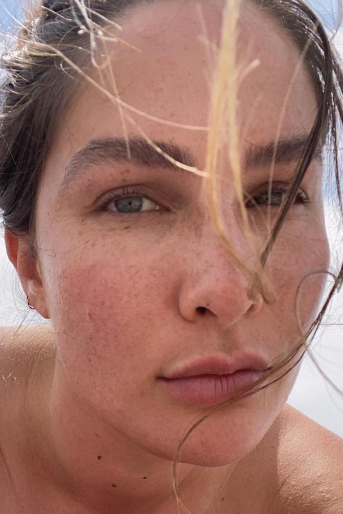 Best Moisturiser Dry Skin UK: CHELSEA MILLER