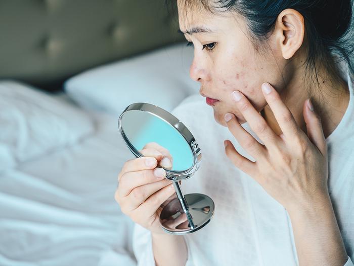 Taking Zinc for Acne Can Help, a Dermatologist Explains