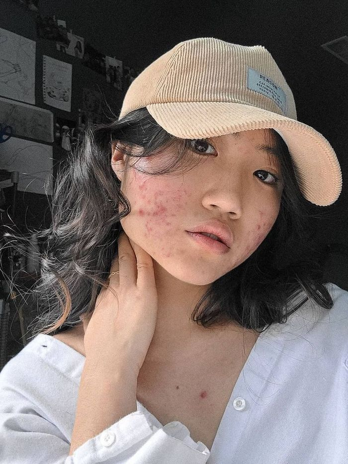 Acne Skincare Routine: Jenny Yu wearing white shirt and baseball cap