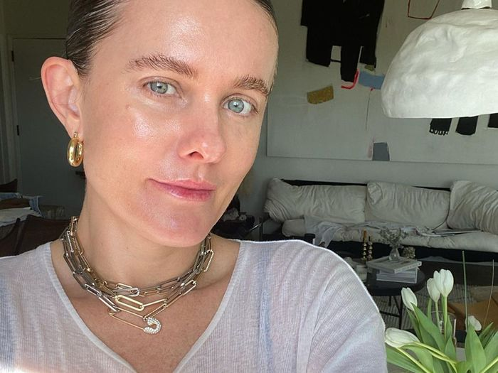 I Turned 41 This Month, so I Had a Thread Lift—Here's Why I Recommend It