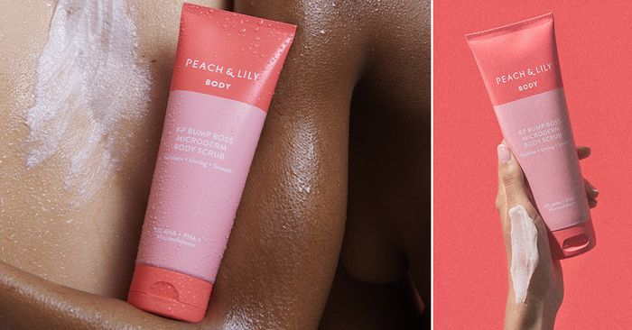 I've Had Bumpy Upper Arms Since I was a Kid—Meet the One Product That's Helped